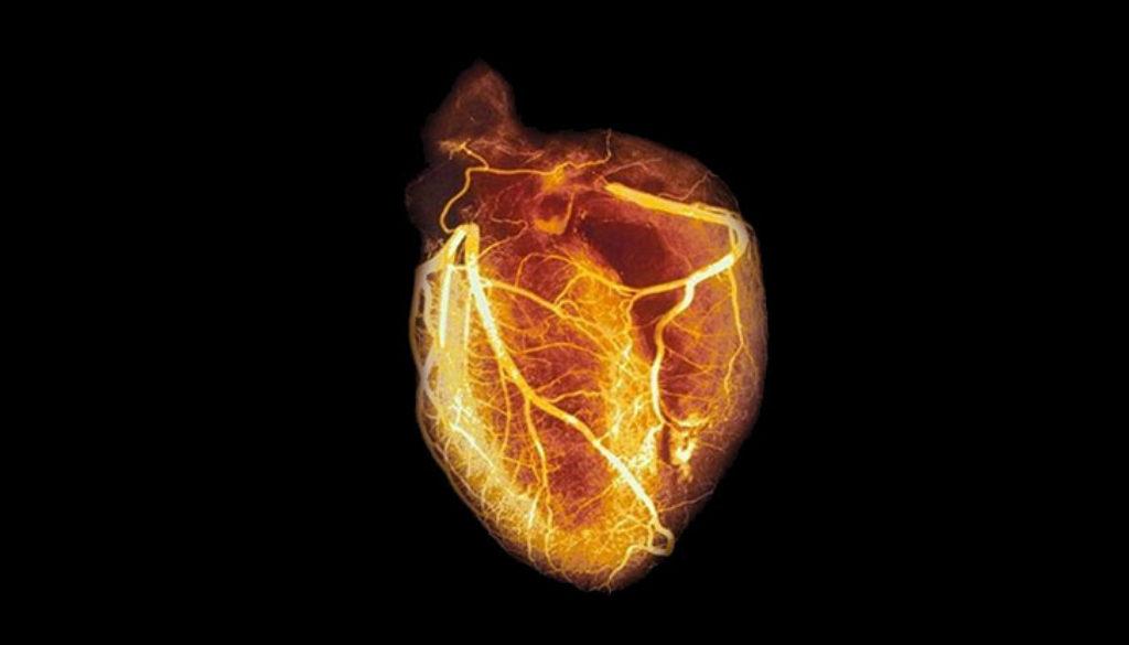 arteriogram